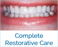 Complete Dental Service