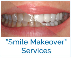 Smile Makeover Services